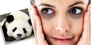 Ini Penyebab Kalian bias mempunyai Mata Panda